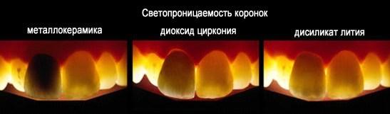сравнение светопроницаемости металлокерамической коронки (крайняя слева) и коронок из современных материалов