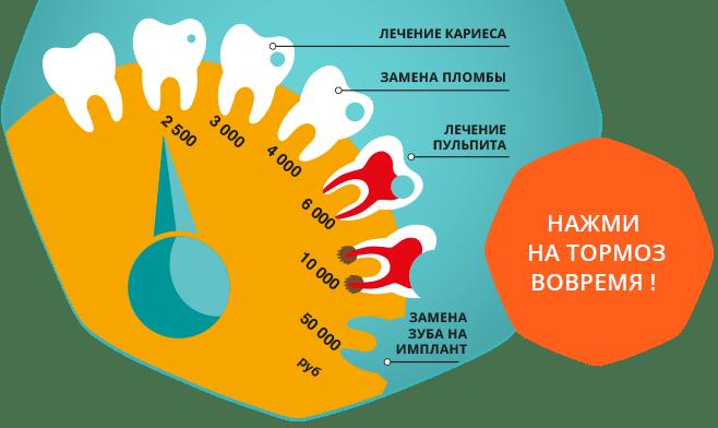 Вот путь от кариеса в стадии «пятна» до потери зуба. И судя по этому рисунку лечение может стать только дороже
